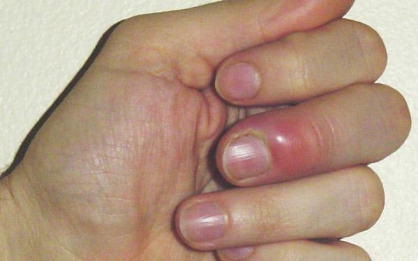 Mon enfant a un  ongle incarné ou Panaris - 1