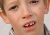 dent cassée, morceau de dent, dent qui bouge, morceau de dent dans le lait, dentiste