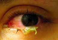 conjonctivite, infection, virus, bactérie, yeux rouges, allergie, collyre dans les yeux