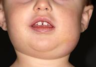 oreillons, infection virale, joues gonflées, vaccin,  complication des oreillons