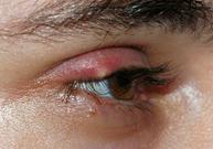 orgelet, paupière, bouton sur la paupière, infection, bactérie, staphylocoque doré, collyre dans les yeux, compresses tièdes