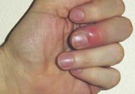 ongle incarné, panaris, bain, couper les ongles, pus, ronger les ongles