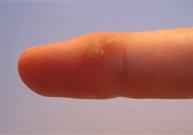 verrue, infection virale, soigner les verrues, propagation d'une verrue