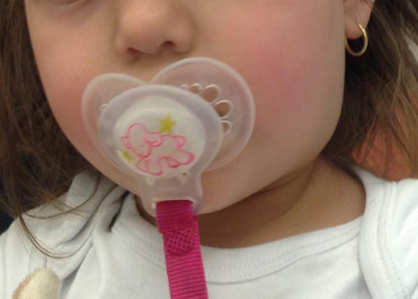 Mon enfant a un  Ganglion tuméfié - 1